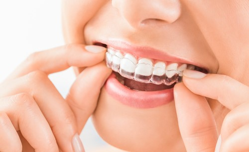 align technology product invisalign